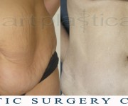 Abdominoplasty (Tummy Tuck) - before and after 5 years