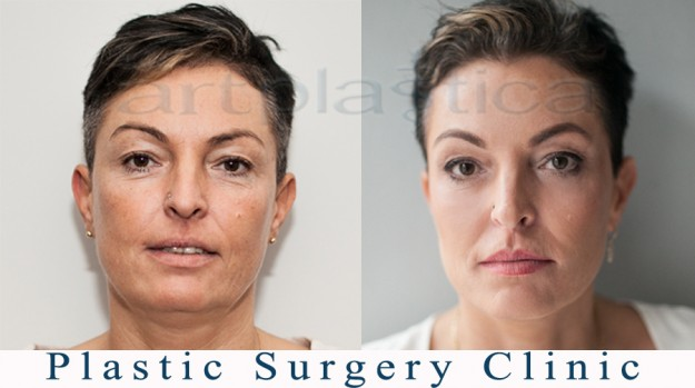Aesthetic Medicine - before and after