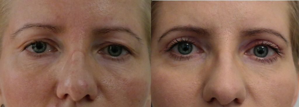 Anna - Eyelid Correction - before and after - Artplastica