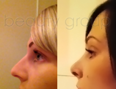 Alice - nose correction - before and after