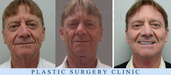 Augusto from Italy - facelift, necklift - Plastic Surgery - BeautyGroup