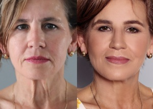 Beautiful after 40! - Beauty Group |